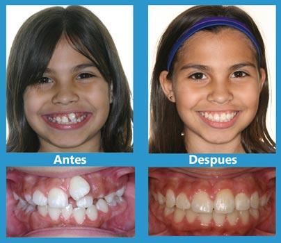 Caso-de-estudio-1---Ortodoncia