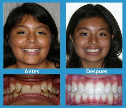 casos-de-estudio-2--ortodoncia